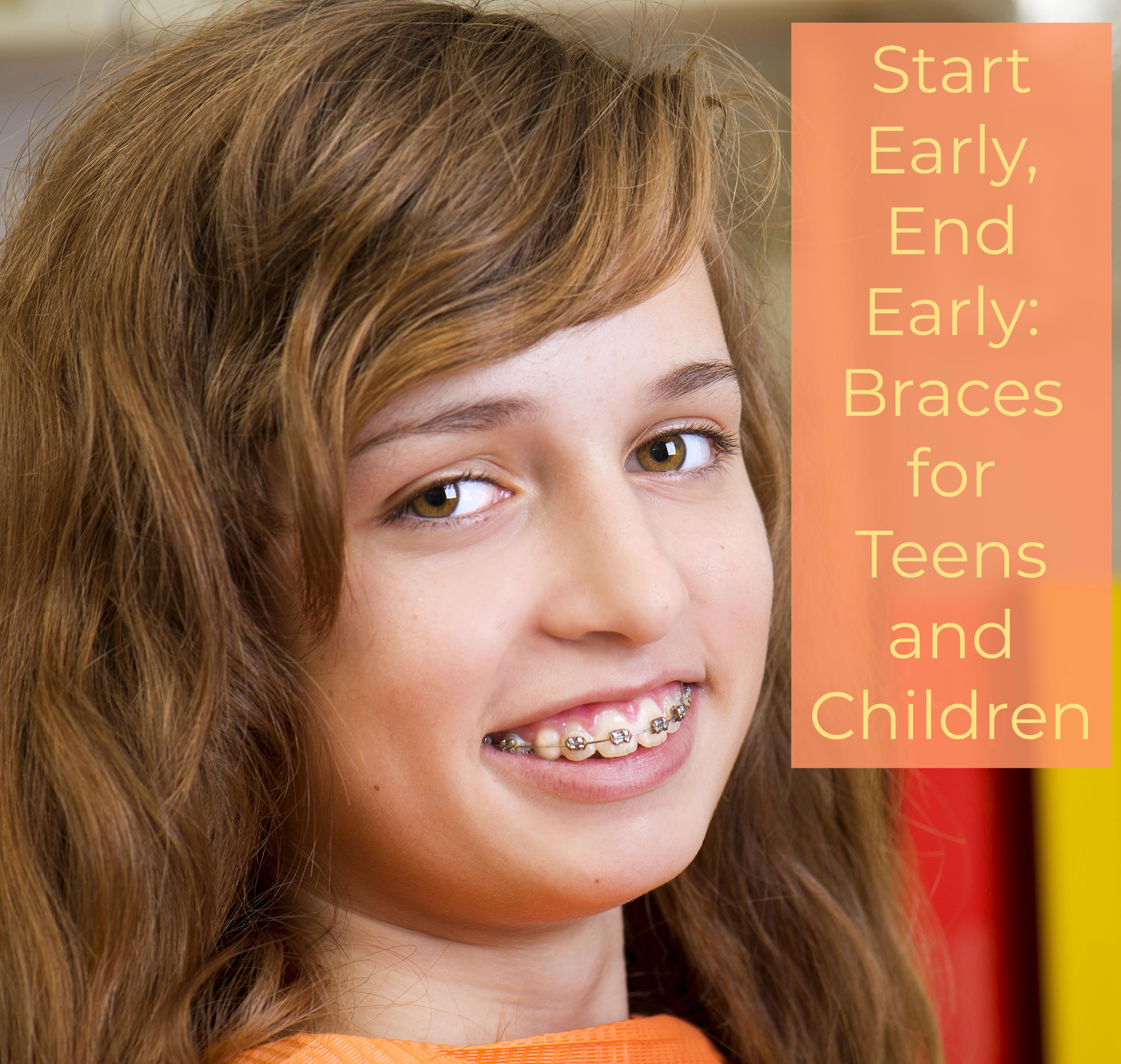 braces for straight teeth